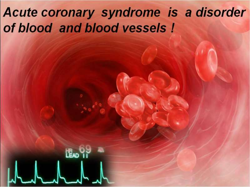 12 Lead ECG in Acute Coronary Syndrome (ACS)