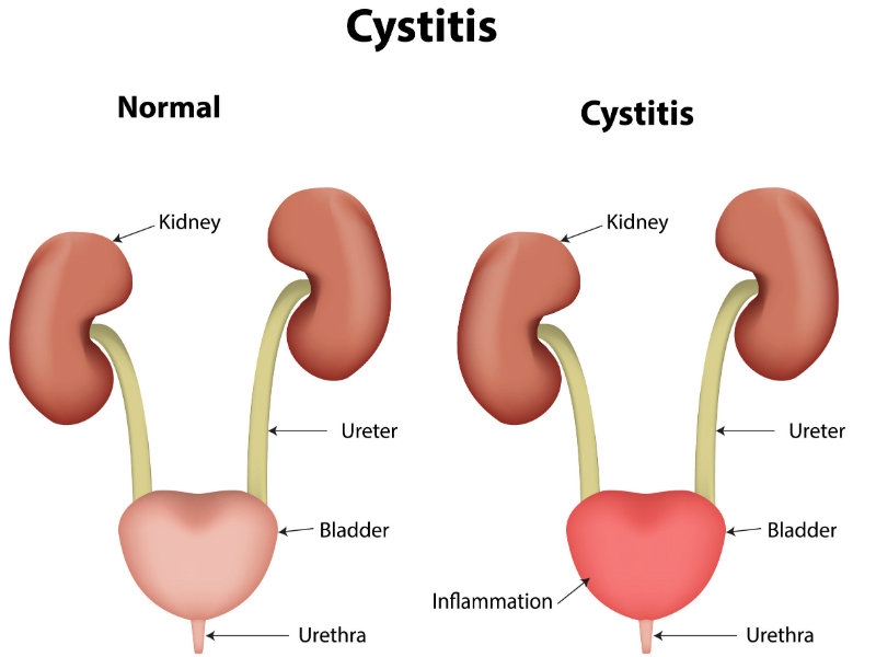 Cystitis in women
